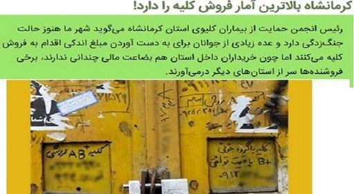 کلیه-فروشی-کرمانشاه-ایران-01